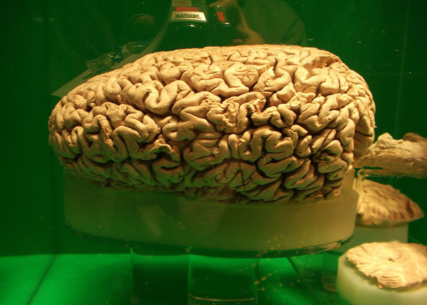 This is the only genuine photograph of a sperm whale brain I know of